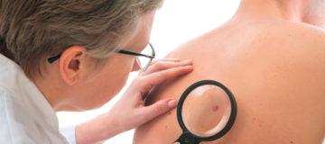 плоскоклеточный рак кожи успешно лечится