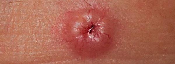 на фото плоскоклеточная карцинома лица
