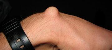 воспаленная липома на руке