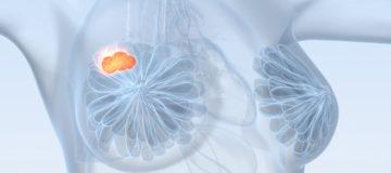 диффузная форма рака молочной железы прогноз