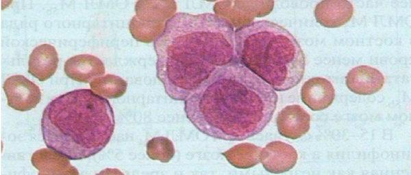 строение клеток миеломоноцитарной формы
