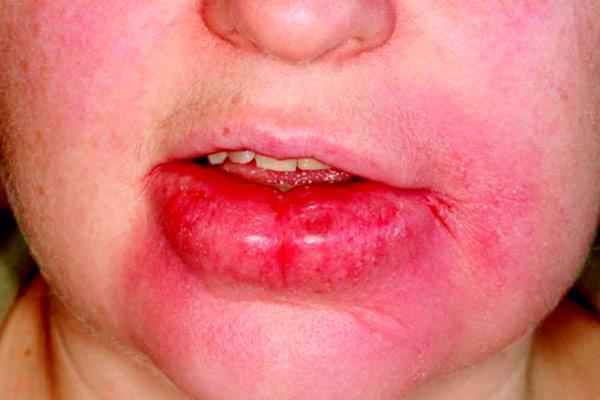 синдром вялой кожи