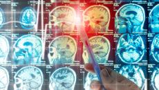 на какой стадии рака появляются метастазы в головном мозге