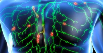 доброкачественные лимфомы включают несколько видов