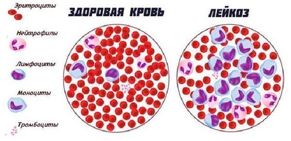 состав больной крови