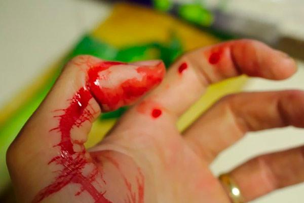 в крови мало тромбоцитов