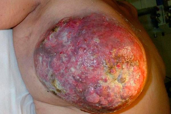 карцинома правой груди