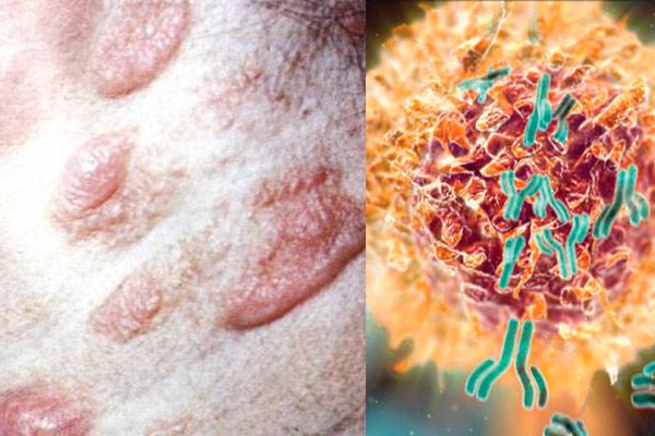 крупноклеточная неходжкинская лимфома