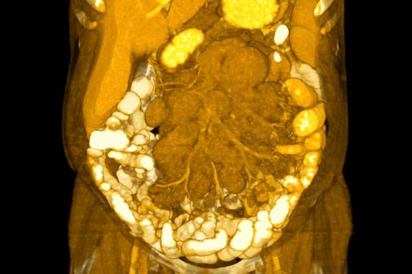 большая лимфома в брюшной полости