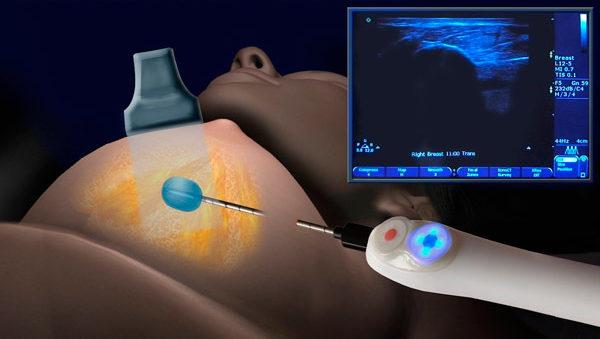 иглой берут образец ткани опухоли