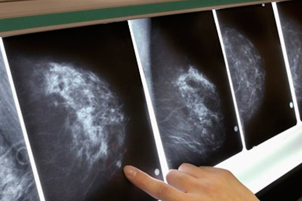 строение диффузной формы рака