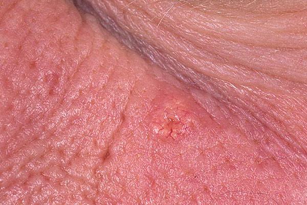 фото воспаленной сальной железы на лице