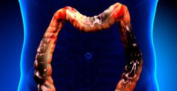 злокачественная опухоль кишечника диагностируется с помощью рентгена