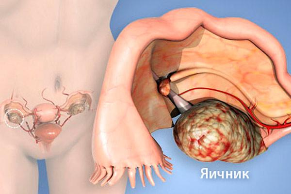 как выглядит рак органа