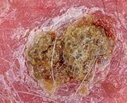 как выглядит рак кожи