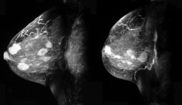 опухоли в области молочных желез