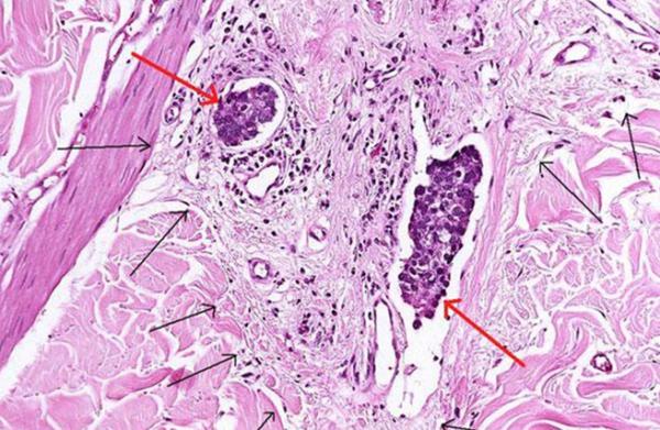 клетки характерные для аденокарциномы