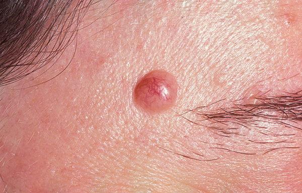 симптомы и виды опухолей