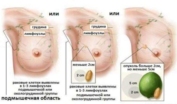 лечение опухоли на 2 стадии