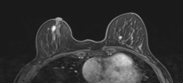 листовидная опухоль в груди