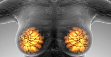 доброкачественная опухоль молочной железы легко лечится