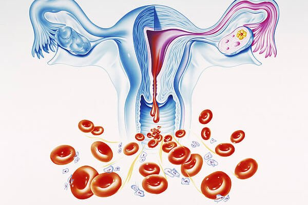 кровотечения при фиброме