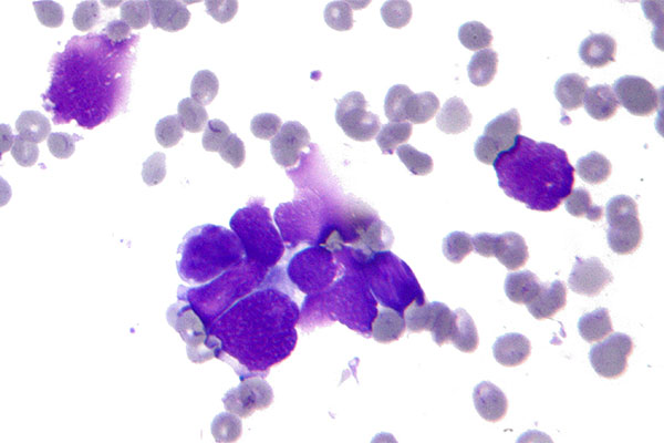 Недифференцированный лейкоз под микроскопом