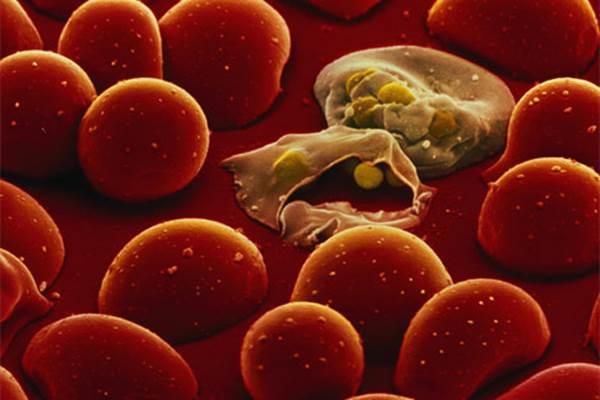 Гистиоцитоз клеток Лангерганса