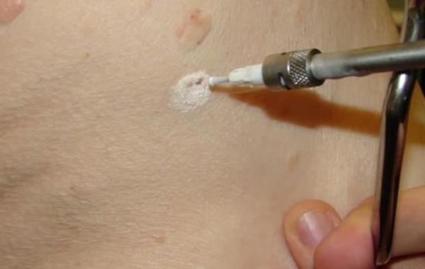 криодеструкция позволяет удалять опухоль безболезненно