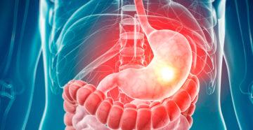 злокачественные опухоли желудка делятся на несколько видов