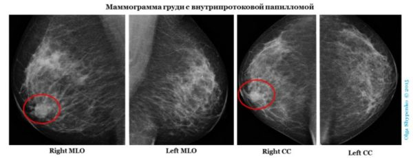 фото и классификация доброкачественных раковых новообразований