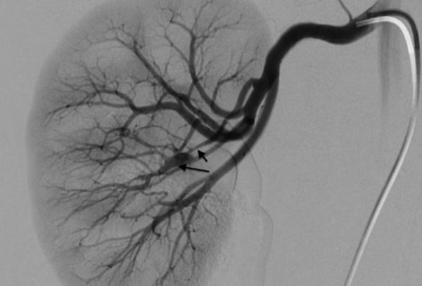 сосуды возникшие вследствие усиленного ангиогенеза