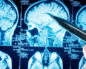 как выглядит раковая опухоль в голове